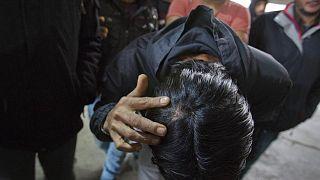 مهاجر يزعم تعرضه للضرب على يد الشرطة الكرواتية أثناء محاولته عبور الحدود إلى كرواتيا، الأربعاء، 13 مارس 2019.