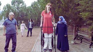 رومِیسا گلگی بلندترین زن زنده جهان