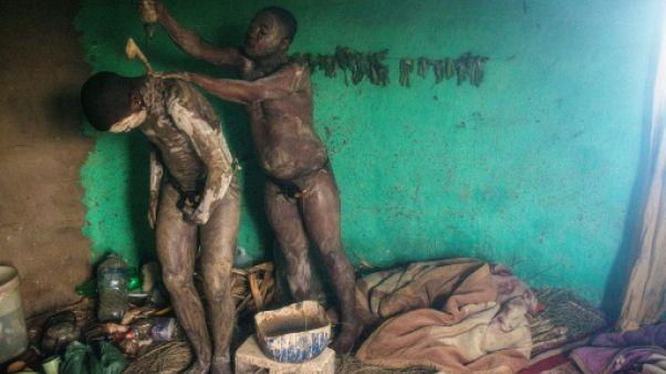 La circoncision traditionnelle, un dangereux rite de passage vers l'âge adulte