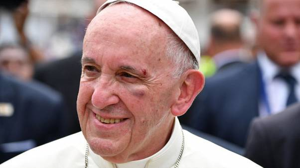 Pope bumps head, hurts left eye, but is well - Vatican