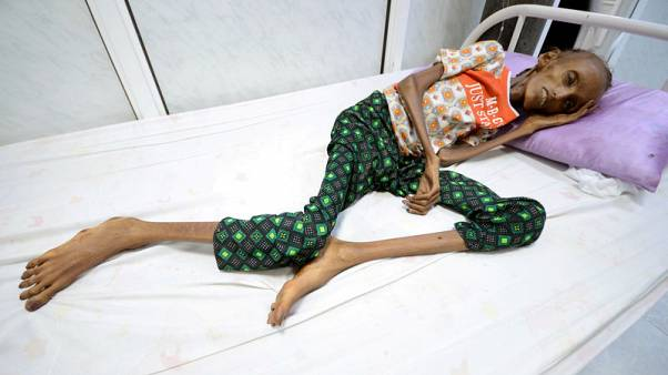 U.N. warns if no Yemen aid access, world will see largest famine in decades