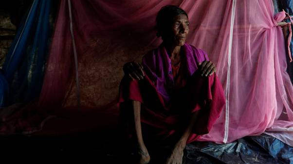 Bullets and burns - Portraits of injured Rohingya refugees