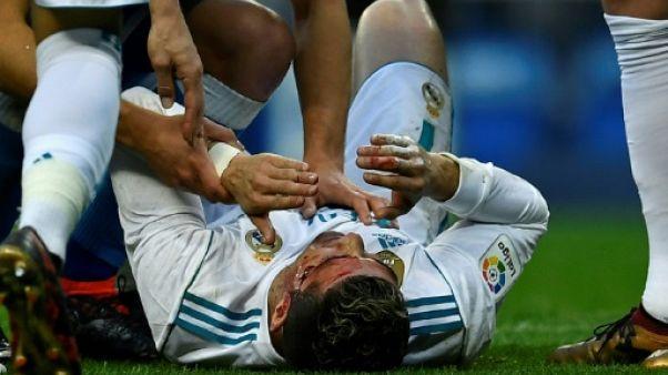 Real Madrid: le visage en sang, Ronaldo se regarde sur un téléphone