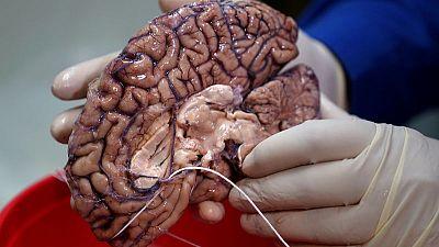 Scientists hunt down genes behind humankind's big brain
