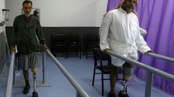 """A Damas, des prothèses """"made in Syria"""" pour les amputés de la guerre"""