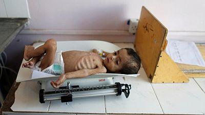 Yemen war a 'living hell' for children - UNICEF