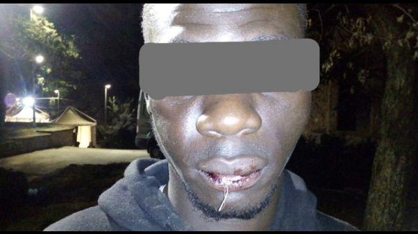 Migrante ferito dopo visita del Papa