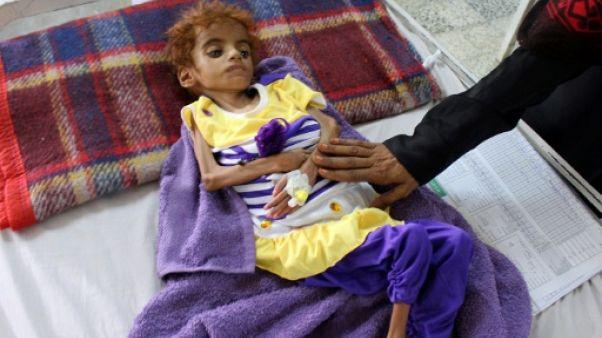 Au Yémen, le désespoir des médecins face aux enfants affamés