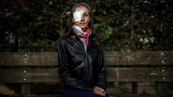 """Spectatrice blessée à la Ryder Cup: """"une plainte pour alerter sur la sécurité du public"""""""