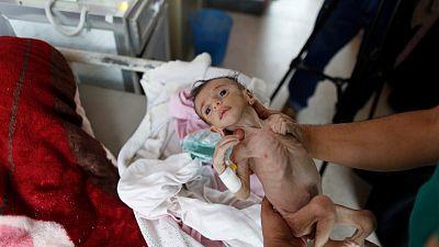 يونيسف: أطفال اليمن يموتون وأطراف الصراع تمنع وصول المساعدات