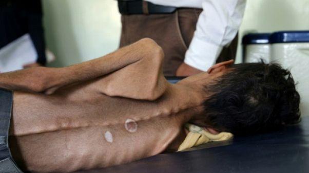 """Le Yémen en guerre, un """"enfer sur terre"""" pour les enfants (Unicef)"""