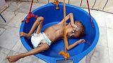 Ghazi Saleh, visage de l'agonie des enfants yéménites affamés