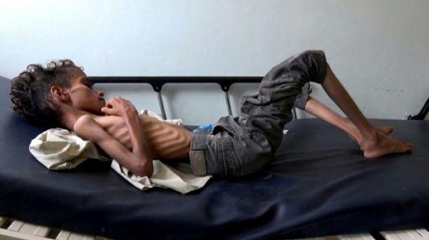 85.000 enfants morts de faim ou de maladie au Yémen, selon Save the Children