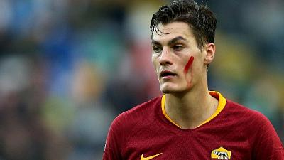Roma, Schick si affida a mental coach