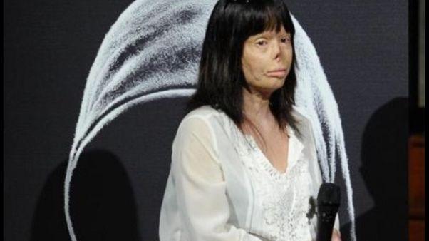 Sfigurata da marito: dubbi su morte ex