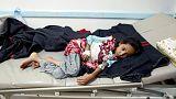 بكتريا عمرها 100 عام توفر دلائل عن وباء الكوليرا