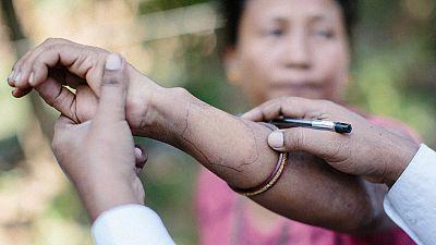 Novartis renews WHO medicine donation pledge with aim of ending leprosy