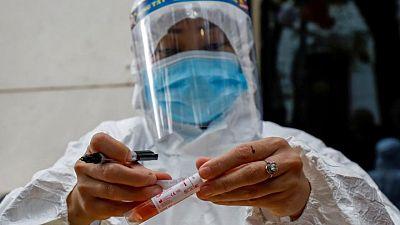Los casos del virus en todo el mundo superan los 175,86 millones y las muertes alcanzan las 3.955.633