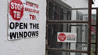 Doctors Without Borders (MSF): Governments off track on providing tools to prevent tuberculosis (TB), the second biggest infectious disease killer after COVID-19